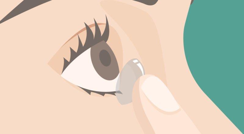 Mit Kontaktlinsen schlafen - es ist weit verbreitet, aber auch gefährlich